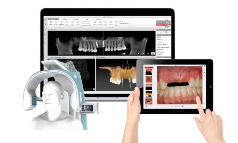 インプラント治療用ソフトウェア「ノーベルクリニシャン・ソフトウェア」イメージ