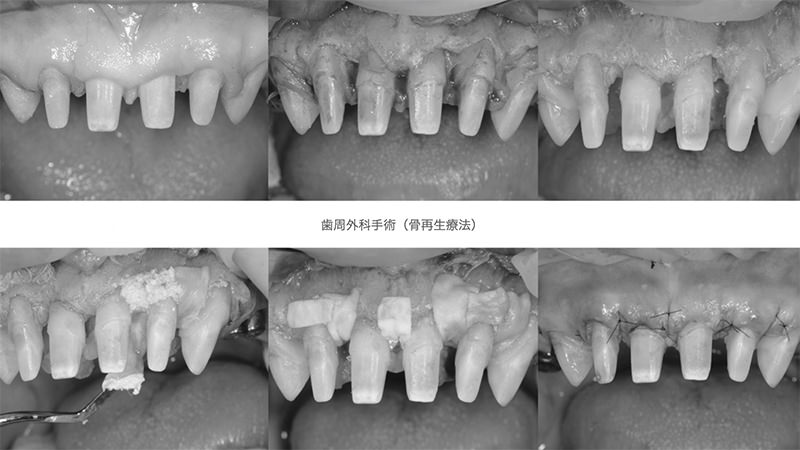 歯周外科手術(骨再生療法)